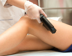 Special Beauty - Epilation